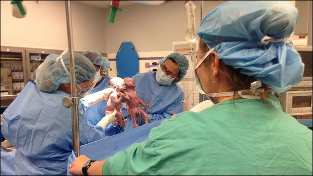 双子の赤ちゃんが手をつないでお腹の中から出てきた感動的な写真